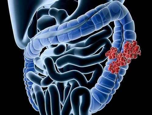 img-procedures-colon-cancer-1