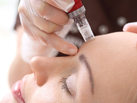 img-Microneedling-with-PRP