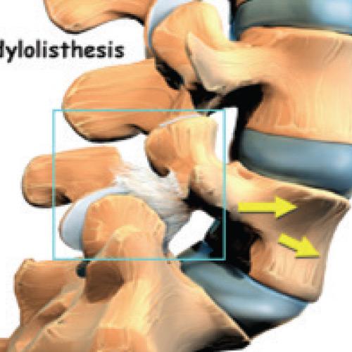 Adult Isthmic Spondylolisthesis