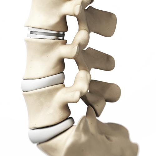 eSpine | Canada East Spine Centre