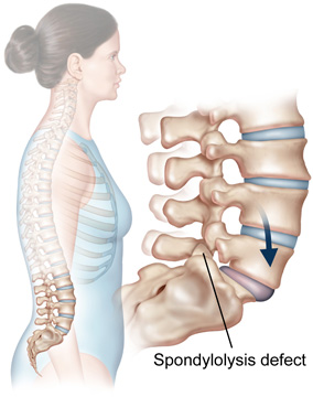can retrolisthesis be congenital Q i have a congenital malformation of the l5 lamina, retrolisthesis and spondylitis please advice patient's query.